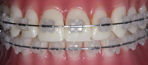 Buccal Orthodontics